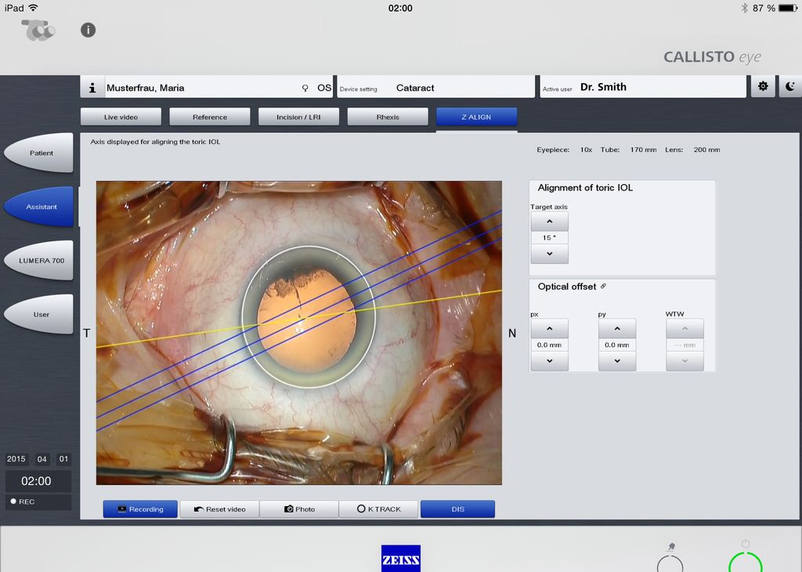 With the analyse of cataract operations the App ZEISS Callisto Eye by the full service agency 3We communication & marketing gmbh helps to treat patients more efficiently.