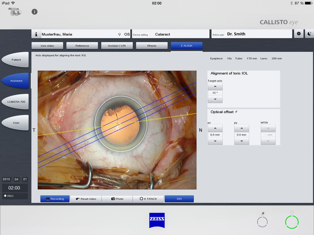 ZEISS Callistool App Screenshot 2